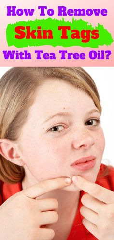 How To Use Tea Tree Oil For Skin Tags? Can you use tea tree oil for skin tags? How does it work and is it a fast solution? Find out in this informative article! Natural Remedies For Congestion, Natural Sleep Remedies, Cough Remedies, Homeopathic Remedies, Natural Cures, Home Remedies, Health Remedies, Natural Health, Pimples Remedies