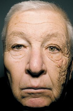 A 69-year-old former truck driver shows the effects of sun exposure on one side of his face.