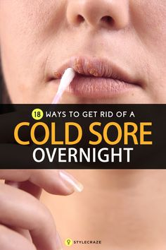 dating someone who gets cold sores