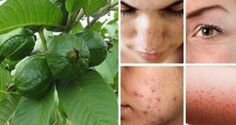 Eliminate wrinkles, acne, dark spots and skin allergies by the use of guava! Guava leaves are one of the most effective natural alternatives which can be beneficial for some skin … Dark Spots On Skin, Skin Spots, Guava Benefits, Guava Leaves, Remover Manchas, Costa Rica, Natural Face Lift, Growing Your Hair Out, Les Rides