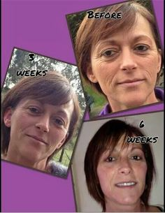 Jeunesse - remarkable results in just 6 weeks!  It's the human growth factor in the Luminesce products that repairs skin damage at a cellular level.