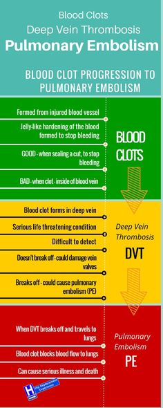 Infographic - How blood clots become deep vein thrombosis. How deep vein thrombosis (DVT) becomes pulmonary embolism (PE)