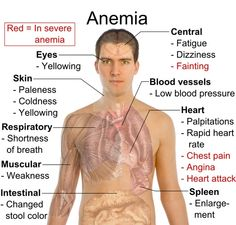 5 Healthy Foods to Fight Anemia