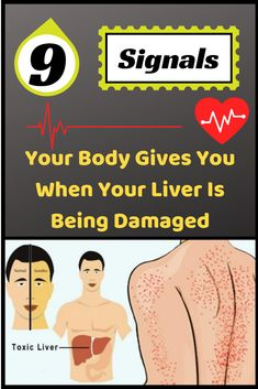 In case you are experiencing liver damage then the best way to understand it is to carefully observeif any of these mentioned symptoms are happening. Here are a few listed symptoms that are a sure indication of severe liver damage. Constantly Feeling Tired, Feel Tired, Natural Health Tips, Natural Skin Care, Natural Healing, Healing Herbs, Natural Beauty, Wellness Tips, Health And Wellness