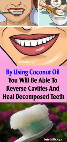 By Using Coconut Oil You Will Be Able To Reverse Cavities And Heal Decomposed Teeth #fitness #beauty #hair #workout #health #diy #skin #Pore #skincare #skintags #skintagremover #facemask #DIY #workout #womenproblems #haircare #teethcare #homerecipe