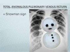Image result for total anomalous pulmonary venous return snowman Medical Students, Nursing, Snowman, Image, Snowmen, Breast Feeding, Nurses