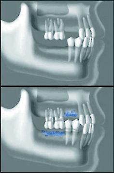 Dental Implants an Integrative Perspective