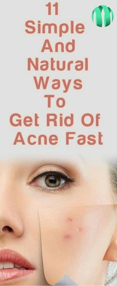 #clean #skin #acne  Clear and beautiful skin is one of the main elements of a person's beauty. One sure way to have healthy and picture-perfect skin is to take care of it every day.
