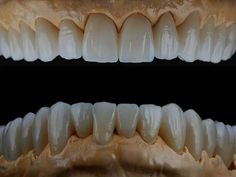 Zęby Dental Aesthetics, Dental Anatomy, Dental Technician, Teeth Shape, Dental Laboratory, Dental Art, Dentistry, Posters, Smile