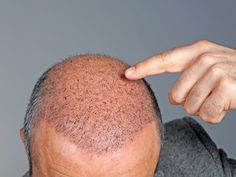 Hair Loss Reversal ?   Regrow Your Hair