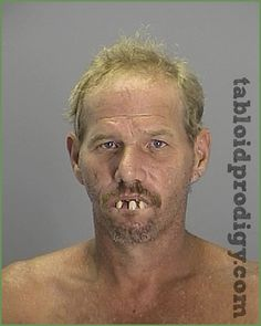 This guys teeth are REAL?! WTF man?Its 2012 , not 1612, use a freakin toothrush!