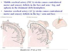 •Middle cerebral artery (MCA) stroke causes contralateral motor and sensory deficits in the (face and arm) > leg, and aphasia in the dominant (left) hemisphere. •Anterior cerebral artery (ACA) stroke causes contralateral motor and sensory deficits in t