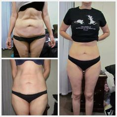 """Many times when we start """"losing the fat"""" our skin doesn't shrink back like it should. Then we get this excess skin. what if you could firm & tighten your skin while losing the fat? These are results from using the Galvanic Body Spa from Nu Skin. Anti Aging Facial, Best Anti Aging, Anti Aging Skin Care, Galvanic Body Spa, Nu Skin, Skin Tightening Cream, Tummy Tucks, Anti Cellulite, Anti Aging"""
