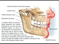 Impacted Wisdom Teeth - Impacted Wisdom Teeth Cause, Sign, Treatment, Symptoms