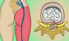 How to Release the Pinched Nerve in Your Lumbar Area (Sciatica): 2 Simple Ways of Getting Rid of the Pain!How to Release the Pinched Nerve in Your Lumbar Area (Sciatica): 2 Simple Ways of Getting Rid of the Pain! Sciatica Pain Relief, Sciatic Pain, Sciatic Nerve, Nerve Pain, Back Pain Relief, Lumbar Pain, Intervertebral Disc, Degenerative Disc Disease, Back Pain