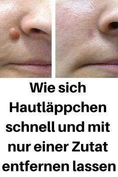 How to remove skin lobes quickly and with just one ingredient .- Wie sich Hautläppchen schnell und mit nur einer Zutat entfernen lassen How to remove skin lobes quickly with just one ingredient # Hautläppchen - Natural Hair Mask, Natural Hair Styles, Oral Health, Health Tips, Health Foods, Goji, Remover, Skin Tag, Mouthwash