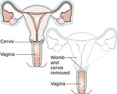 Hysterectomy is nothing but a surgical procedure wherein the womb (uterus) is removed. This surgery therefore is only carried among the women who are seen facing issues in their wombs. As per reports, this is among the most common kinds of non obstetrical surgical procedures carried out in the United States of America