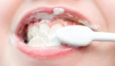 Dental Care Advice And Tips To Keep Your Teeth Strong Whitening Skin Care, Teeth Whitening Remedies, Home Remedies, Natural Remedies, Tooth Decay Treatment, Diy Beauty, Beauty Hacks, Remedies For Tooth Ache, Healthy Teeth