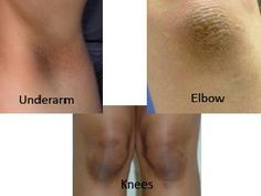 How to Treat Dark Knees and Elbows