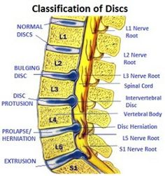 Nerve pain in foot causes pain, weakness, pins and needles or numbness. There may be a problem where the nerve originates from the spine or somewhere along its path aka peripheral foot neuropathy. Sciatic Nerve, Nerve Pain, Spinal Disc Herniation, Lumbar Disc, Spondylolisthesis, Back Pain Remedies, Degenerative Disc Disease, Spinal Stenosis, Spine Health