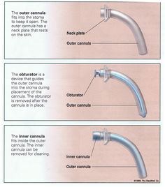 tracheostomy tubes | Parts of Tracheostomy Tube: | Critical Care ...