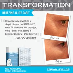 Rodan + Fields, Real results, no needle required!