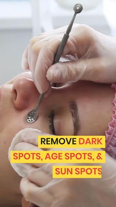 Here's a Great Solution Recommended by Beauty Experts to clear up dark spots, age spots & sun spots. Lighten Dark Spots, Brown Spots On Skin, Skin Spots, Bob Wedding Hairstyles, Inverted Bob Hairstyles, Pixie Haircuts, Medium Hairstyles, Curly Hairstyles, Angled Bobs