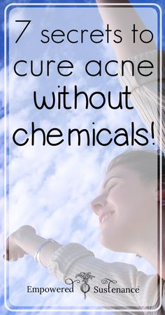 7 Secrets that Cured My Acne without Chemicals!  This stuff really works, and most of it is probably already in your home.  :)