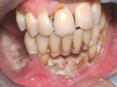 Visite o seu Higienista Oral