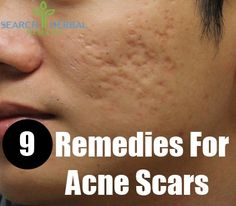 Beauty: Remedies to try if you have acne scars.