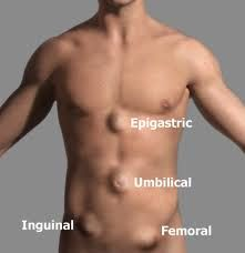 Epigastric, Umbilical, Inguinal and Femoral Hernias.