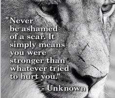 If you have scars for any reason at all, physically or emotionally I'm here for you and praying for you