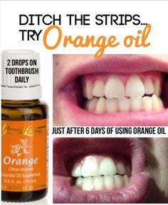 Teeth Naturally Orange oil to whiten teeth. Want to whiten teeth naturally. Only 2 drops of this daily for 6 days.Orange oil to whiten teeth. Want to whiten teeth naturally. Only 2 drops of this daily for 6 days. Making Essential Oils, Orange Essential Oil, Essential Oil Uses, Doterra Essential Oils, Natural Essential Oils, Yl Oils, Helichrysum Essential Oil, Geranium Essential Oil, Natural Oils