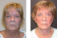 Do Face Toning Workouts Really Work For A Non-Surgical Facelift?