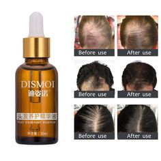 New 30ml/bottle Hair Growth Liquid For Men Liquid Beard Growth Fast Enhance Facial Whiskers Moustache Hair Treatment Essence