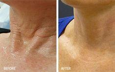 PRP Skin Rejuvenation Therapy - New Beauty Anti-aging és Orvosi Esztétika
