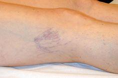Soffri di vene varicose o vorresti prevenirle? Ecco cosa puoi fare! SEGUICI ANCHE SU TELEGRAM: telegram.me/cosedadonna