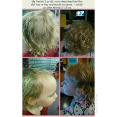 Balance system hair was like doll hair or hay 3 yrs old 3 months later MP# 298302