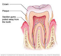 Periodontitis - Mayo Clinic