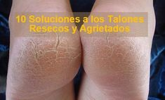 Talones-Agrietados Pedicure, Health Fitness, Hair Beauty, Skin Care, Hair Styles, Tips, Exercise, Chill Pill, Dress Blues