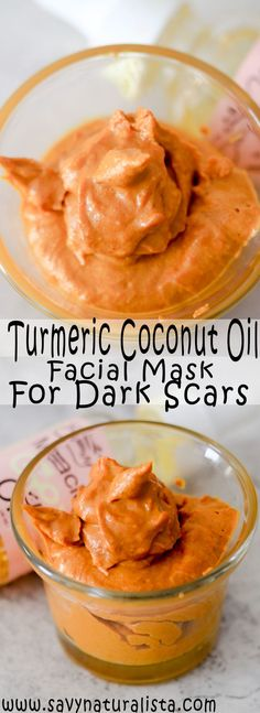I tried Coconut Oil and Turmeric Face Mask For Dark Scars One Week This turmeric coconut oil mask is known for getting rid of dark scares well after one week let's see if we can get results! Tumeric And Coconut Oil, Coconut Oil Facial, Turmeric Oil, Coconut Oil For Acne, Coconut Oil Hair Mask, Coconut Oil Uses, Tumeric Face, Coconut Oil Scars, Turmeric Health