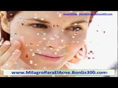 COMO QUITAR EL ACNE - COMO CURAR EL ACNE - COMO ELIMINAR EL ACNE - http://solucionparaelacne.org/blog/como-quitar-el-acne-como-curar-el-acne-como-eliminar-el-acne/