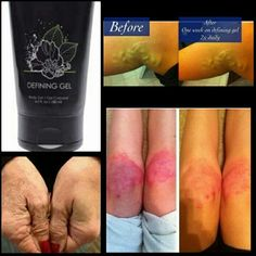 Defining Gel minimizes the appearance of cellulite and varicose veins, improves skin texture & tightness. Perfect with our Ultimate Body Applicator. ALSO help with: Acne, Dry Skin, Psoriasis, Eczema, Sunburns, diaper rash, varicose veins, muscle and joint pain, burns, rashes, shaving,(no red bumps), waxing, bug bites, and more!