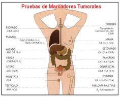 El cáncer se origina de células en el cuerpo. Las células normales se multiplican cuando el cuerpo las necesita y mueren cuando se dañan o ...
