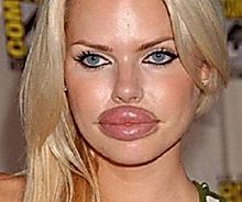 Farrah Abraham plastic surgery went horribly wrong. Lip implants gone wrong on Tuesday which ended as one of the worst celebrity plastic surgery ever Botched Plastic Surgery, Bad Plastic Surgeries, Plastic Surgery Gone Wrong, Plastic Surgery Fails, Bad Celebrity Plastic Surgery, Celebrity Surgery, Lip Implants, Chin Implant, Prévenir Les Rides