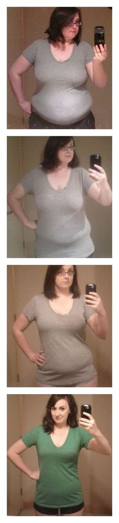 Amazing video of this ladies 85lb weight loss. Click through to see the gif, it's pretty cool.: