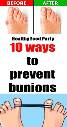 Besides being unsightly, bunions are downright painful. More common in women than men, bunions are hereditary, so giving yourself the upper hand may be what keeps you from traveling the same painful bunion path as others in your family. Bunion Remedies, Bunion Relief, Pain Relief, Home Remedies, Natural Remedies, Get Rid Of Bunions, Sore Feet, Natural Treatments