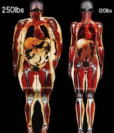 It's not just about looks.  This picture shows the effects of being overweight on the joints, organs and bones.  Get healthy from the inside out.  www.zillafitness.com