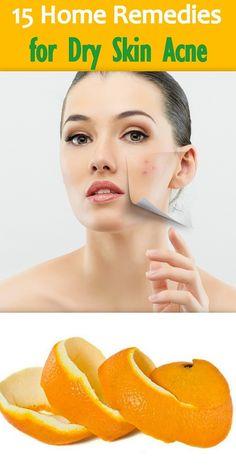 15 Effective #HomeRemedies to Treat Dry Skin #Acne http://www.feminiya.com/home-remedies-for-dry-skin-acne/