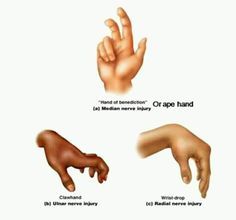 Each nerve palsy has hallmark hand positions. Make sure you know the difference between median, ulnar and radial nerve injurys. Occupational Therapy Assistant, Occupational Therapy Activities, Nbcot Exam Prep, Radial Nerve, Physical Therapist, Physical Therapy Student, Medical Anatomy, Human Anatomy And Physiology, Massage Therapy